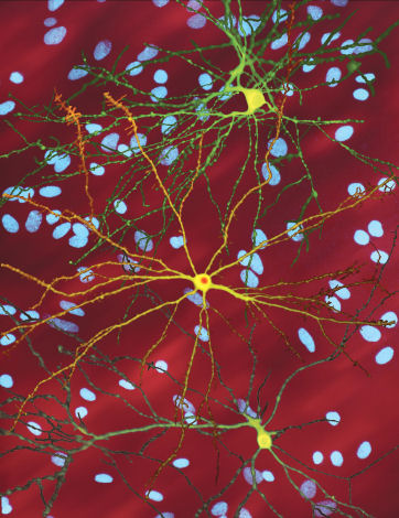Images of neurons in culture from the Finkbeiner lab. Cells in green and yellow have been 'tagged' so they glow, revealing the shape of the cells.